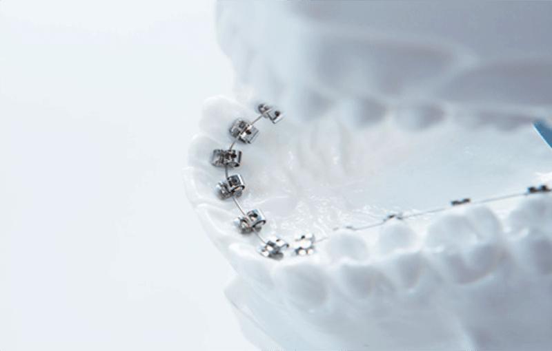 見えない矯正治療の裏側歯列矯正