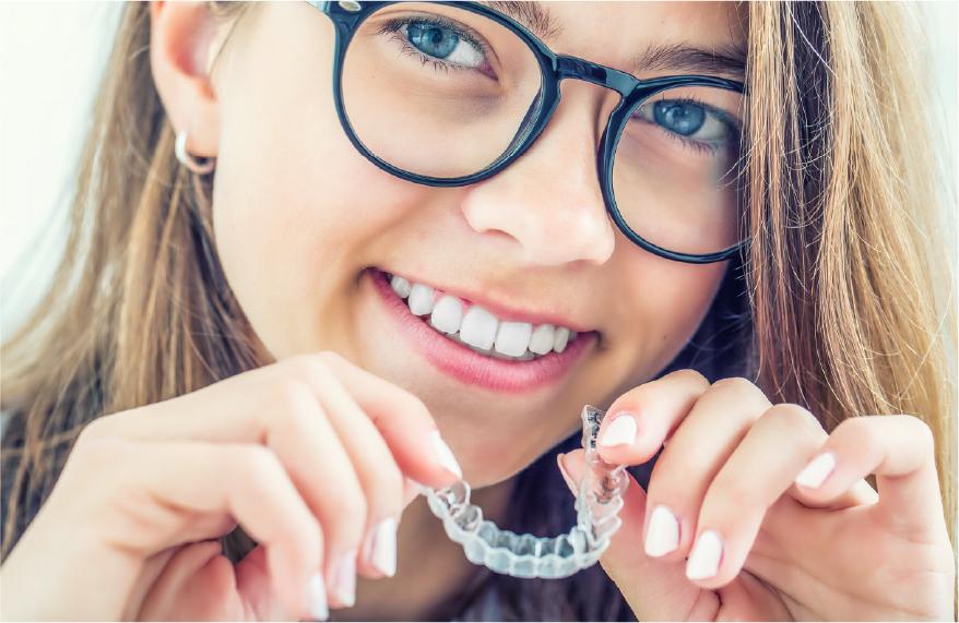 10代の歯列矯正