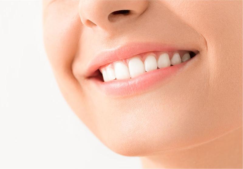 八重歯の治療 ハーフリンガル治療×インビザライン治療